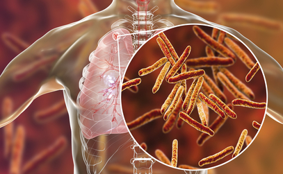 Understanding the Symptoms and Risk Factors of Tuberculosis