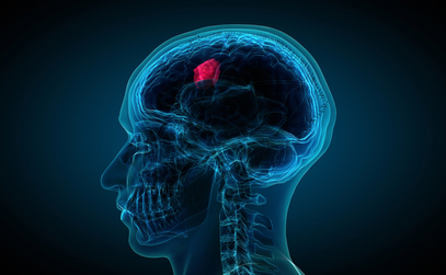 Brain Tumours: 5 Facts to Know