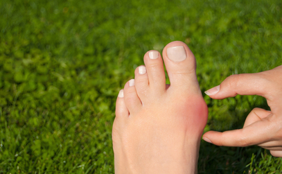Improving Outcomes with Minimally Invasive Bunion Surgery