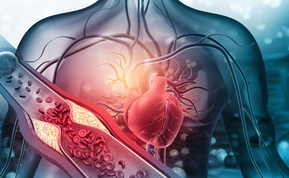 Atherosclerosis (Plaque Buildup): Risk Factors & Treatment