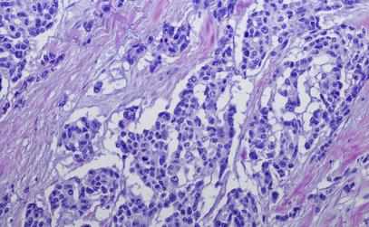 Providing Holistic Care for Advanced and Rare Tumours