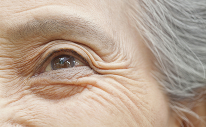 Cataracts: Phacoemulsification, Links to Diabetes and Other Vision Problems